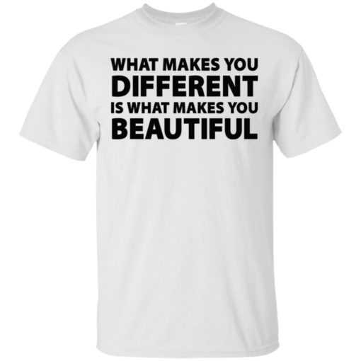 What makes you different is what makes you beautiful